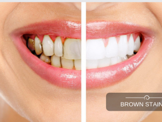 Treatment of Yellow Brown Stain