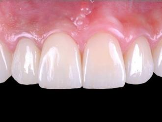 Esthetic Implant