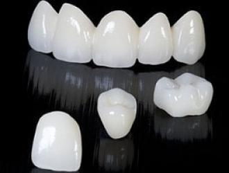 Metal Free All Ceramic Crown (Zirconia/emax)