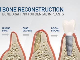 Painless Bone Grafting Procedure