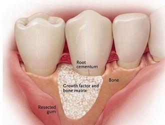 Bone Grafting Around Teeth
