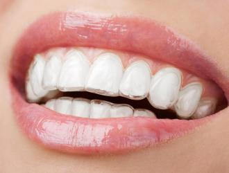 Invisalign Clear Aligner Treatment