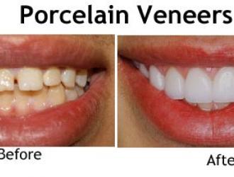 Treatment of Malaligned Teeth